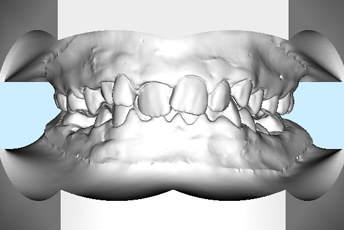3D-Modell mit Zahnfehlstellung
