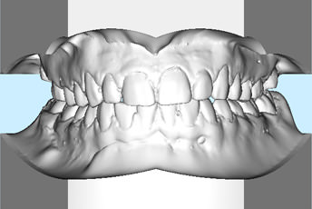 3D-Modell mit korrigierten Zahnbögen